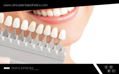 Les carilles dentals