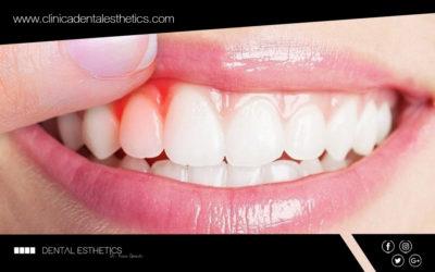 La gingivitis: causes, tractament i prevenció