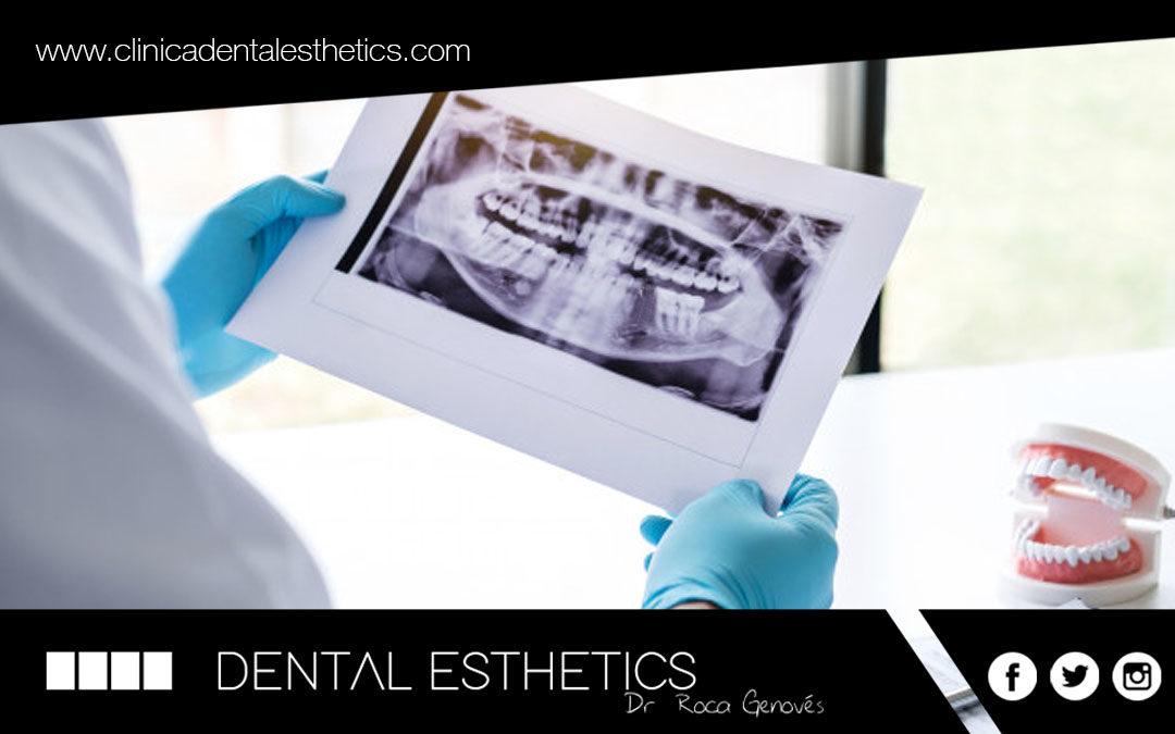 Agenèsia dental