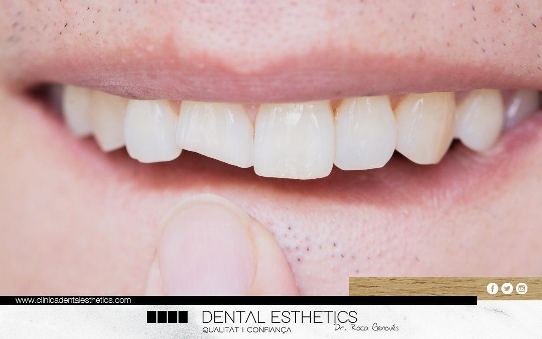 Fractures dentals