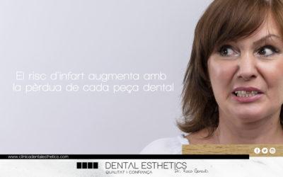 El risc de patir un infart augmenta amb la pèrdua de cada peça dental