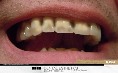 Què passaria si no ens raspallessis les dents durant un any?
